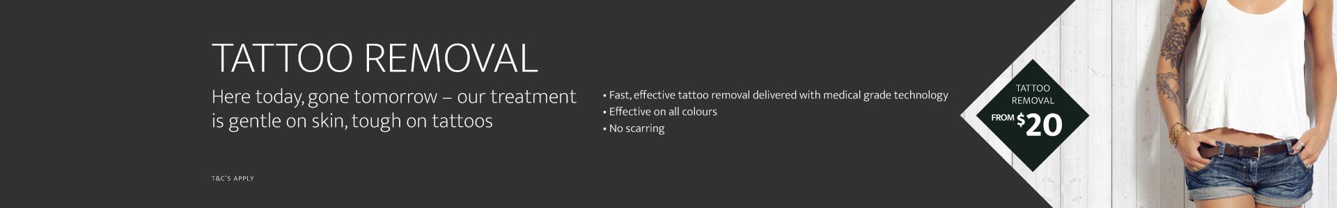 Affordable Laser Tattoo Removal in Sydney | Evolution Laser Clinic
