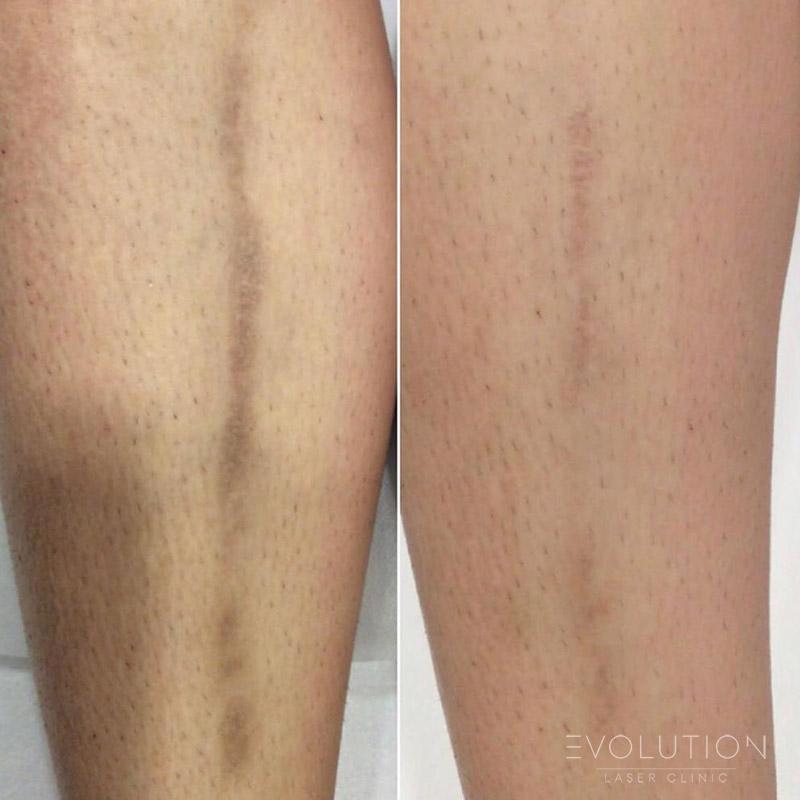 Stretchmark & Scar Reduction